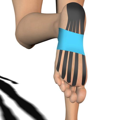 Kinesiotaping, czyli oklejenie stopy elastycznymi lub sztywnymi plastrami