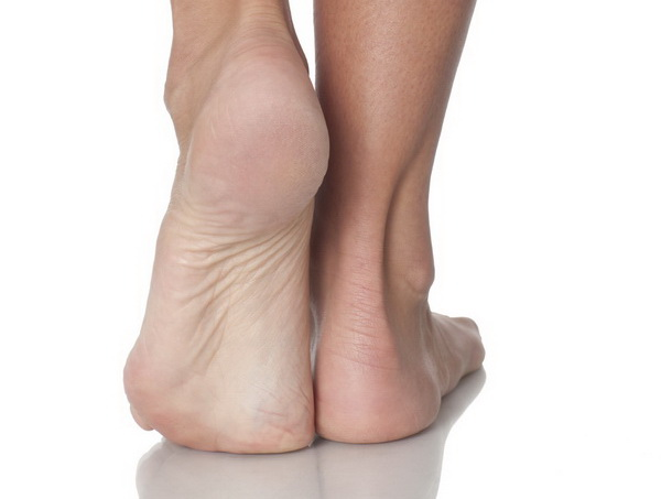 Kontuzje a typ stopy - czy mają coś ze sobą wspólnego? Fot. Istockphoto.com