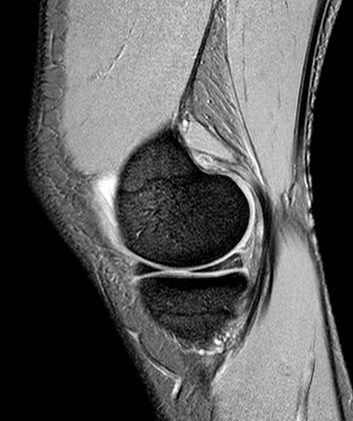 MRI łąkotki